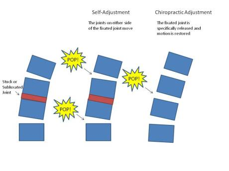 Chiropractic versus self-adjusting