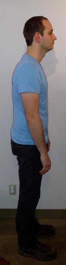 Poor Posture- head is forward, hands on front of legs.