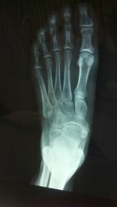 x-ray-223836_1920